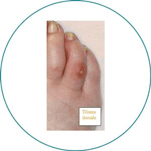 Si attribuisce il nome di Heloma alle ipercheratosi che si formano tra gli  spazi interdigitali delle dita dei piedi. L Heloma ha patogenesi e  trattamento ... bc9fc74dd41